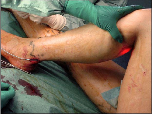 nerf saphène interne douleur